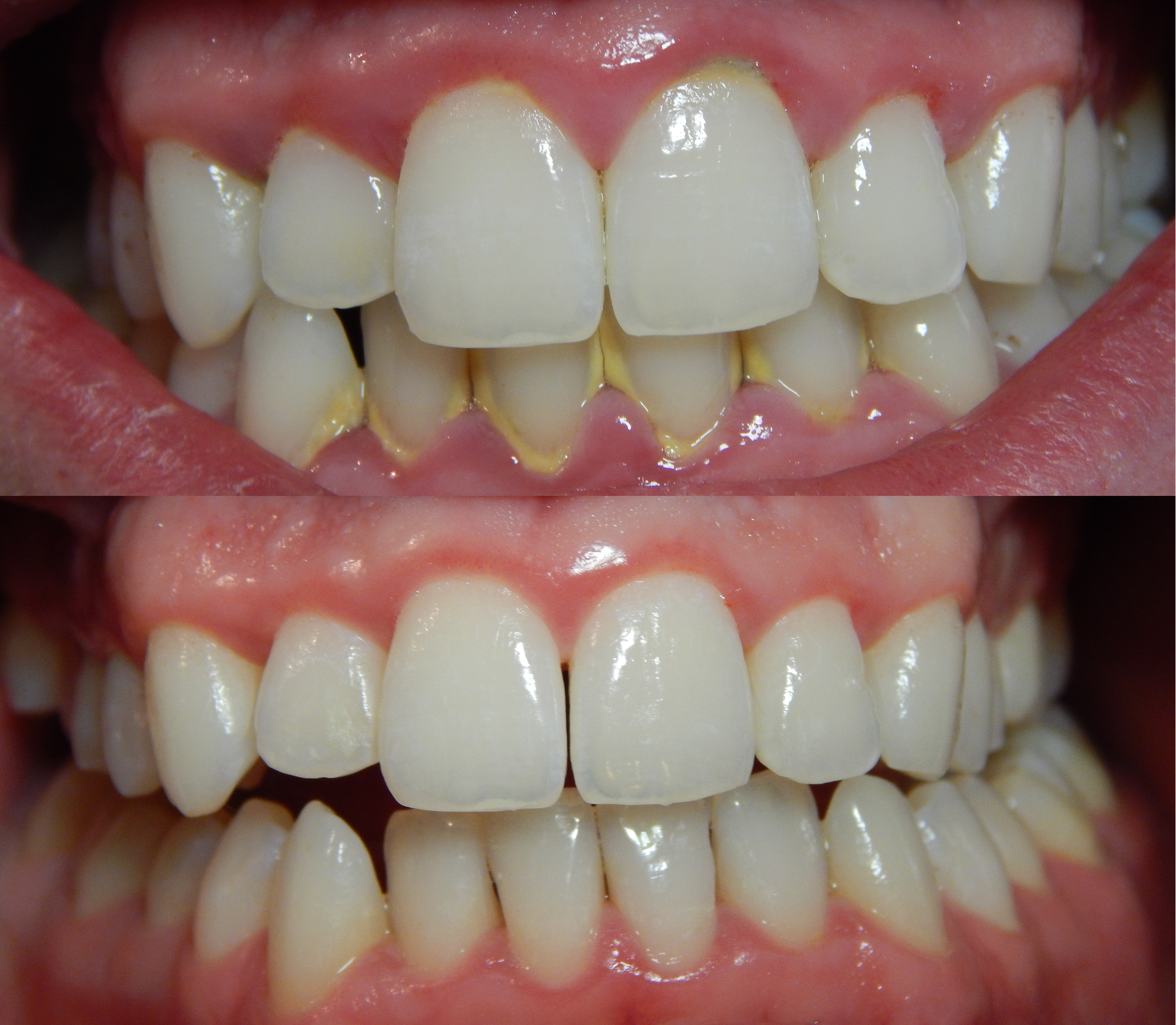 clinica dental alemana torrevieja