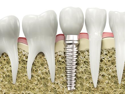 clinica dental alemana en torrevieja1