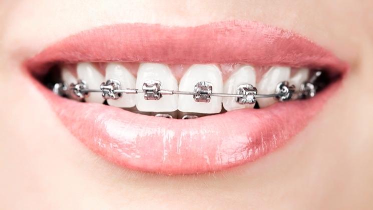 clinica-dental-alemana-en-torrevieja2