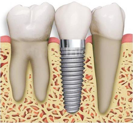 clinica dental alemana en torrevieja