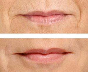 elimincacion-codigo-de-barras-clinica-dental