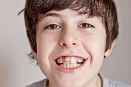 ortodoncia-niños-clinica-dental-alemana-en-torrevieja