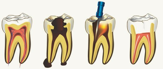 endodoncia-clinica-dental-torrevieja