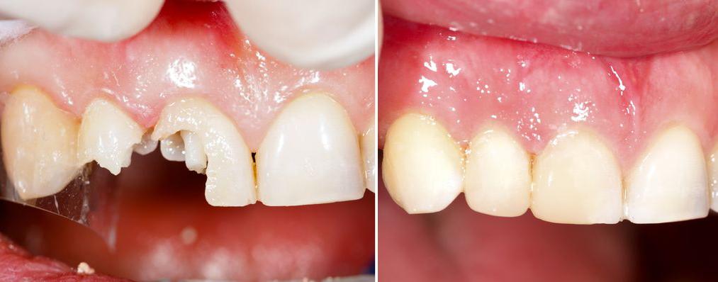 clinica-dental-en-torrevieja